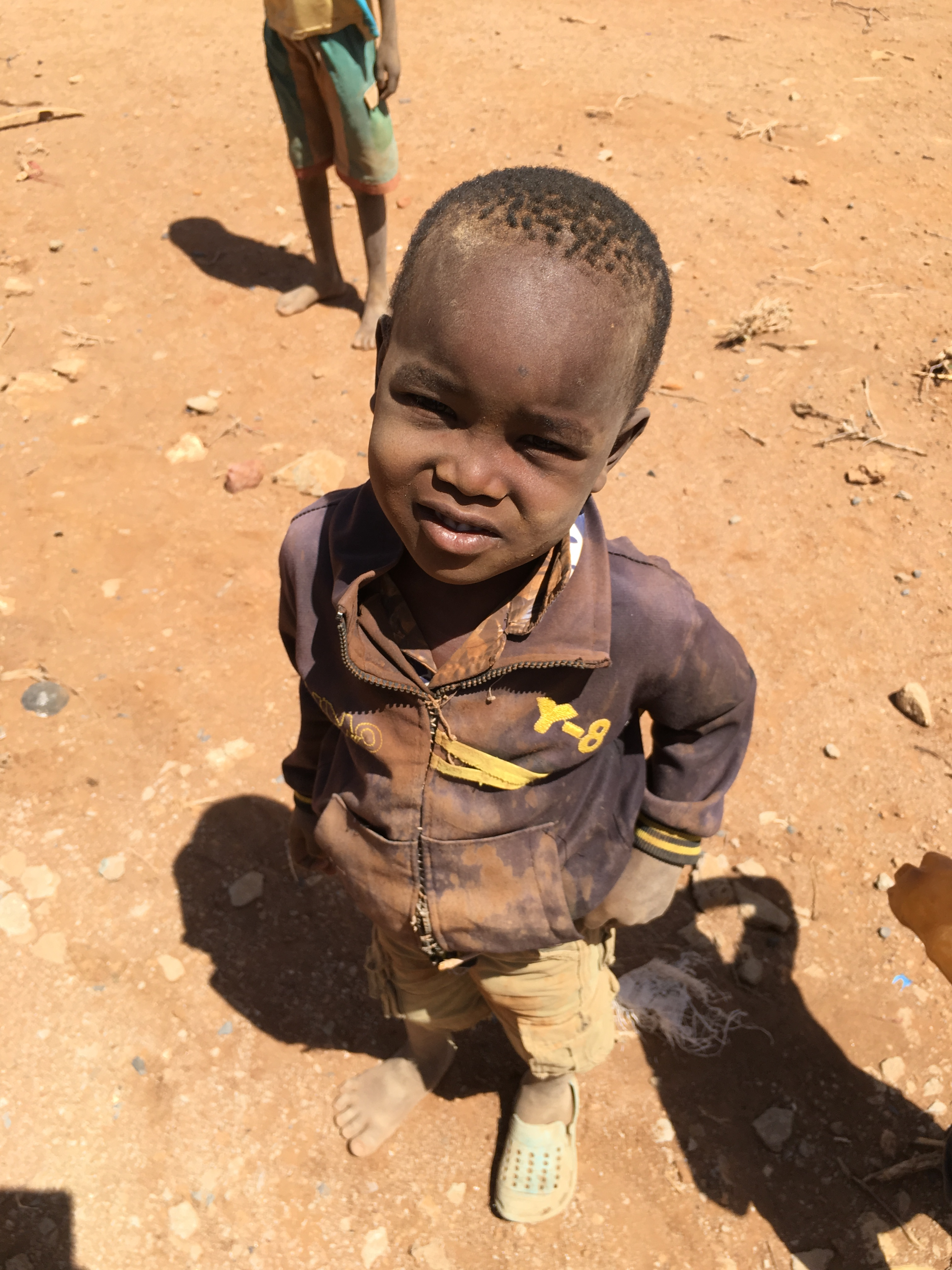 Refugee child in Africa
